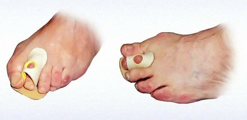 Opaska skórzana na palce młoteczkowate z otworem : wersja - z otworem, rozmiar - 64 mm