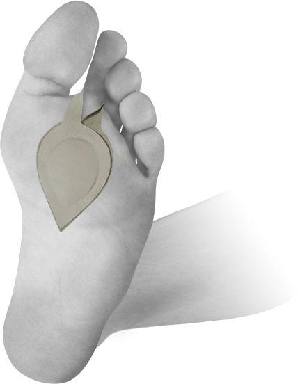 Pelota ortopedyczna na płaskostopie poprzeczne - z mocowaniem na palec (U-MED)